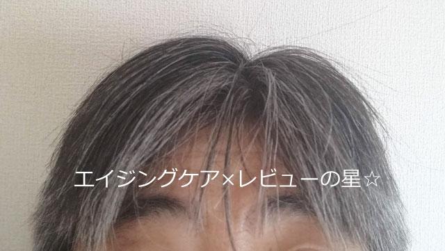 ▲【使用前】SUNA BIOSHOT(スカルプエッセンス/スーナバイオショット)