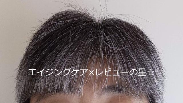 ▲【使用約80日目】SUNA BIOSHOT(スカルプエッセンス/スーナバイオショット)