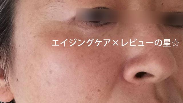 ▲【肌質修正中】[アテニア]スキンレタッチャー