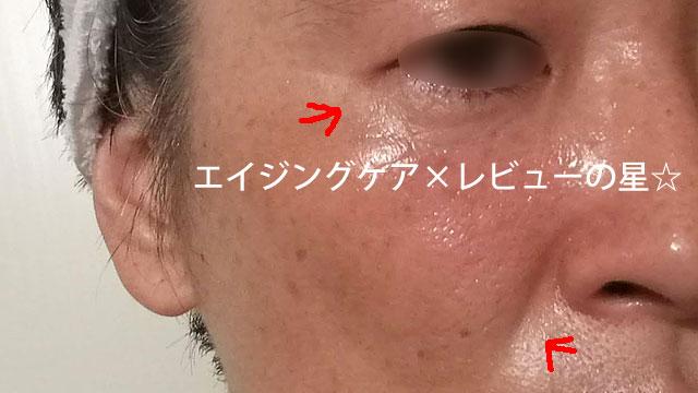 ▲【使用前】イーチケアシート