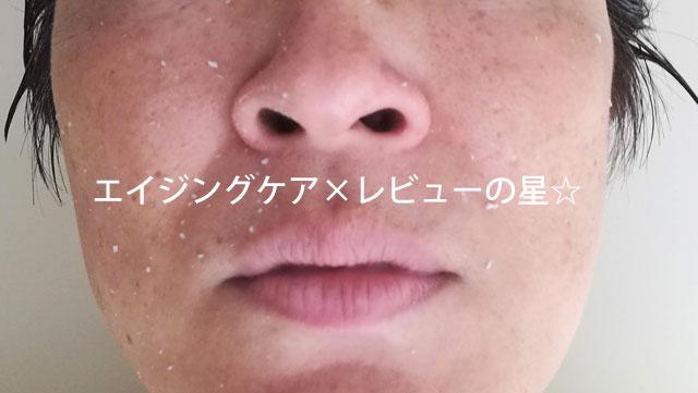 [ドクターソワ/アマランス]APP-Cモイストピーリングで、お顔をピーリング