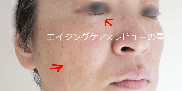 ▲【スキンケア7日目】ヤクルト イキテルセット