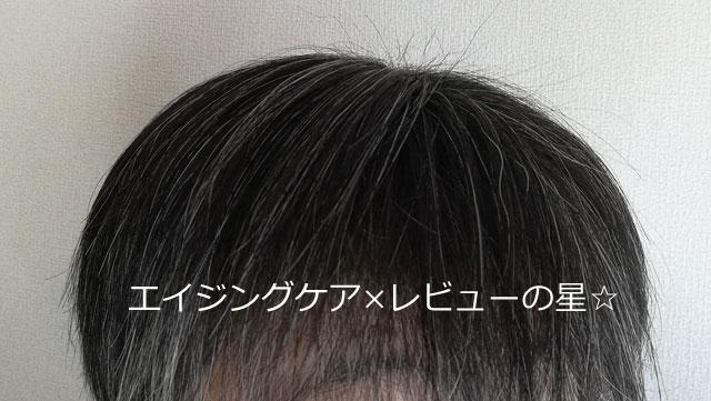 【7ヶ月半頭皮ケア後】ハーブガーデンシャンプー/コンディショナー
