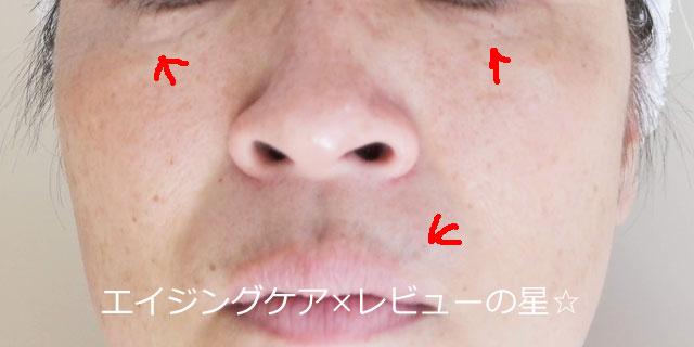 ▲【エイジングケア前】セルビック化粧品