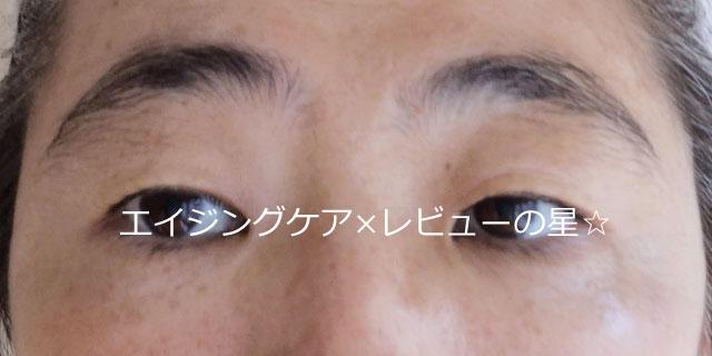 ▲[エピステーム]アイパーフェクトショットa+マッサージ【前】