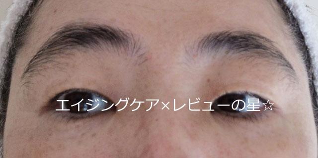 ▲[エピステーム]アイパーフェクトショットa+マッサージ【後】