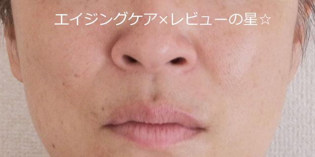 ▲ビーグレンで【たるみケア+マッサージ19日目】