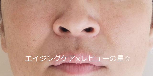 ▲【毛穴ケア前】[ヒフミド]マイルドクレンジング