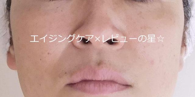 ▲ドクターケイで【毛穴ケア10日目】
