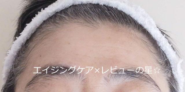 ▲【シワ改善3日目】アヤナス リンクルo/l コンセントレート