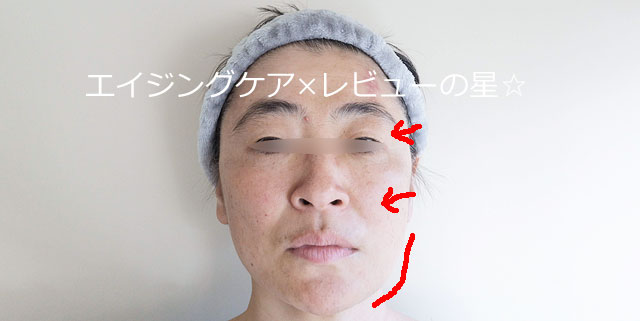 ▲【向かって右側のみ半顔マッサージ後】