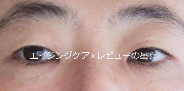 ▲【スキンケア前】リサージ リンクルシューター