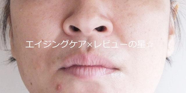 ▲【クレンジング前】[フルリ]クリアゲルクレンズ