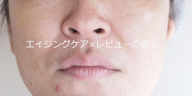 ▲【1回クレンジング後】[フルリ]クリアゲルクレンズ