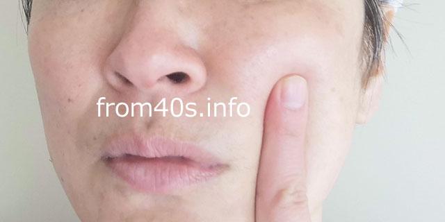 ミノン アミノモイスト化粧水+乳液(混合肌)の手応えは?40代の口コミ