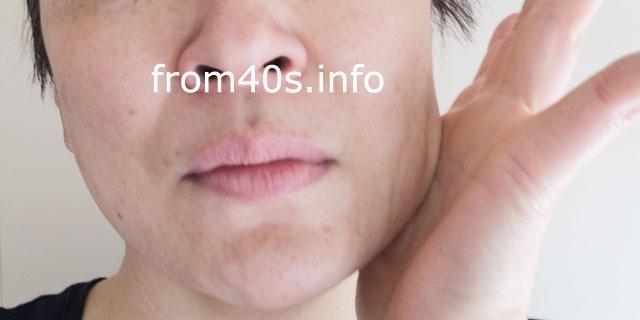 ドモホルンリンクル:保湿液×40代の口コミ!50代にも