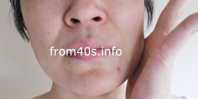 エクイタンス ホワイトエッセンス(薬⽤美⽩美容液)の口コミ