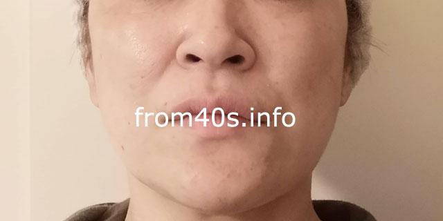 ▲下地+ファンデ【メイク7時間後】RMKスムースフィット ポアレスベース+ジェルクリーミィ ファンデーション
