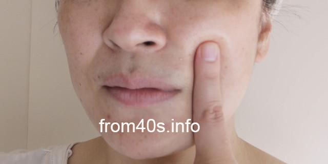 エピステーム ステムサイエンスオイルは、効果的?口コミ